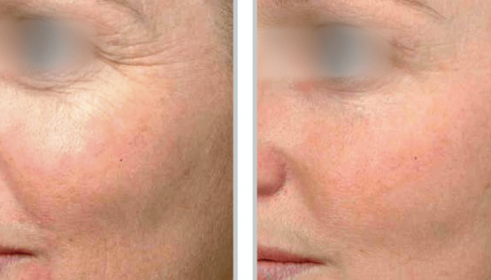 Contour TRL™ Before & After Oakland County MI | FACE Beauty Science