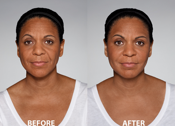Restylane® Defyne Injectable Filler in Oakland County MI | FACE Beauty Science
