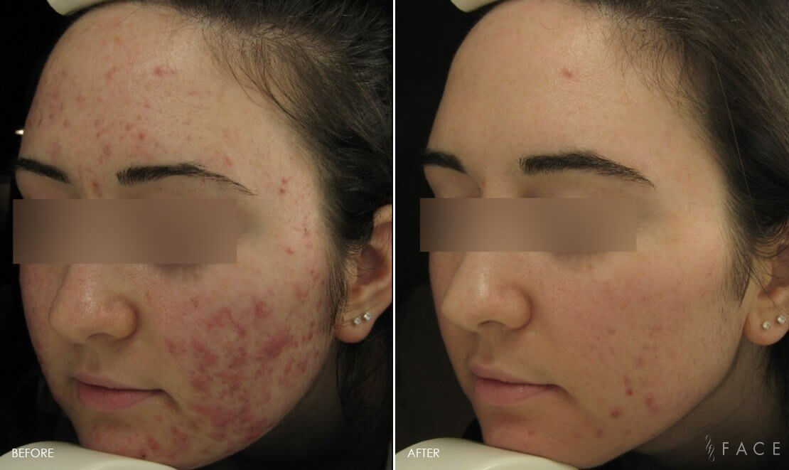 Acne Treatments in Oakland County MI | FACE Beauty Science