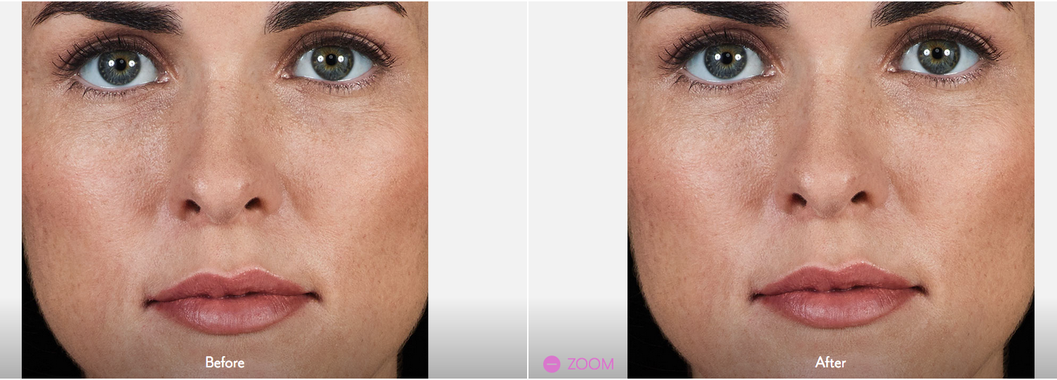 JUVÉDERM VOLBELLA® XC Injectable Filler in Oakland County MI | FACE Beauty Science
