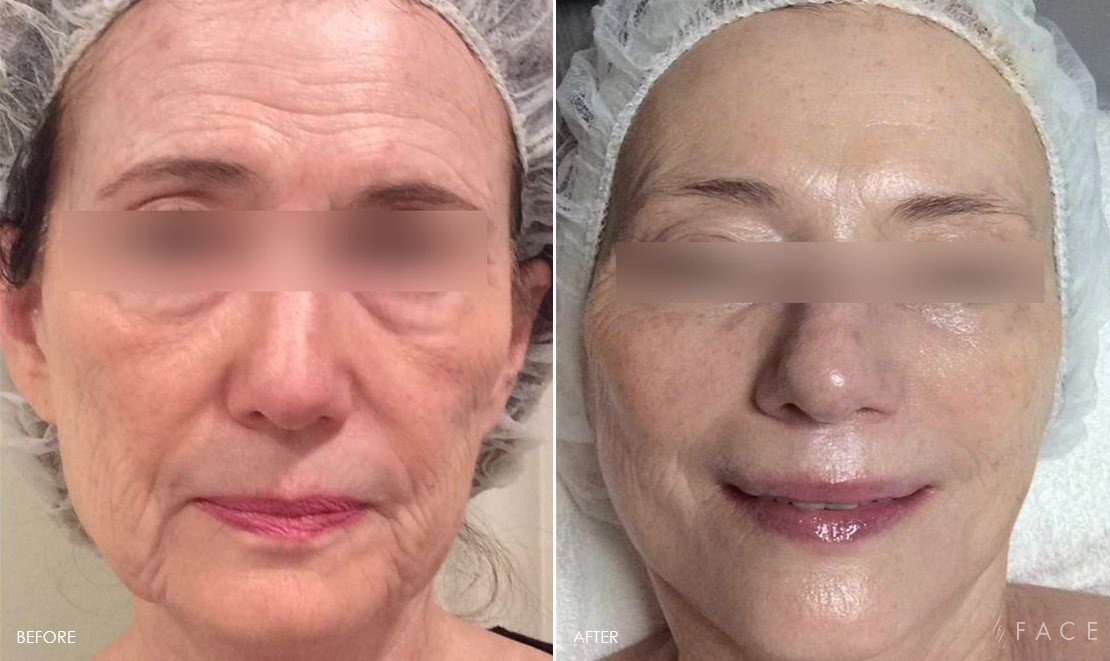 Anti-Aging Results Oakland County MI | FACE Beauty Science