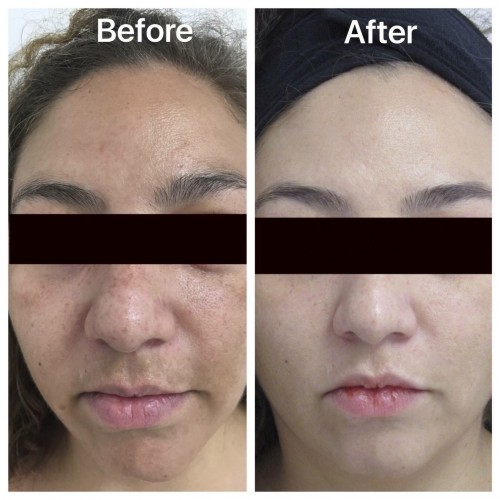 Oxylight® by Sapphire 3® Facial Treatment Oakland County MI | FACE Beauty Science