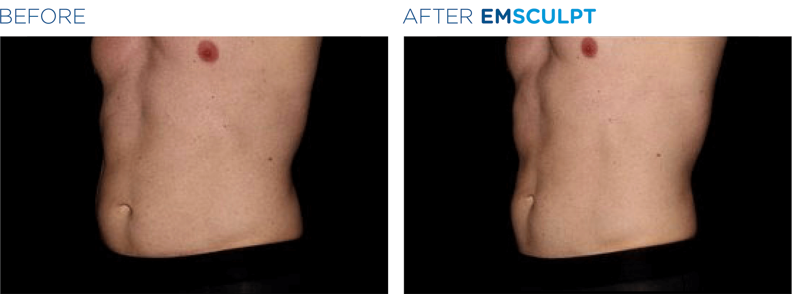 EMSCULPT® Treatments in Oakland County MI | FACE Beauty Science