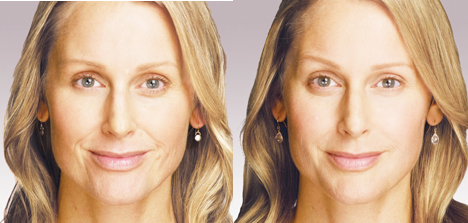 JUVÉDERM® Injectable Filler in Oakland County MI | FACE Beauty Science