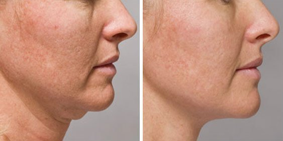 KYBELLA® Treatments in Oakland County MI | FACE Beauty Science