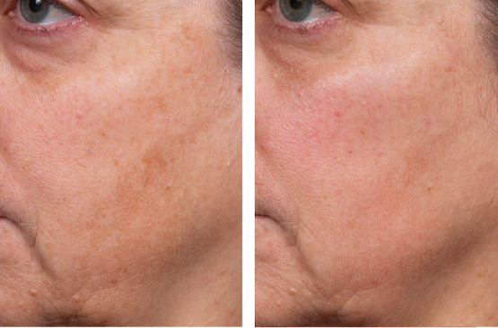 Perméa Laser Treatment Oakland County MI | FACE Beauty Science