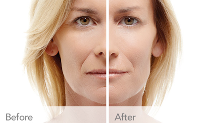 RADIESSE® Treatment Oakland County MI | FACE Beauty Science