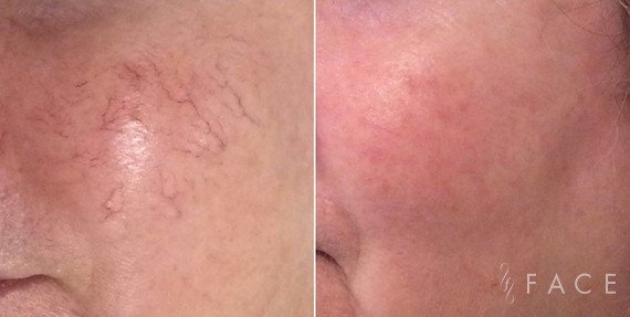 Redness & Rosacea Treatments in Oakland County MI | FACE Beauty Science
