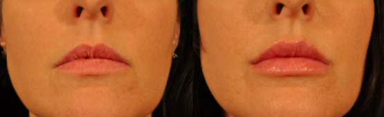 Restylane® Silk Treatments in Oakland County MI | FACE Beauty Science