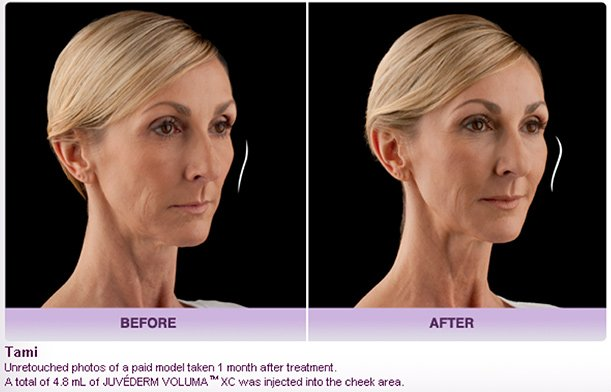 JUVÉDERM VOLUMA® XC Injectable Filler in Oakland County MI | FACE Beauty Science