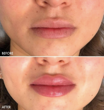 Restylane® Kysse Injectable Fillers Oakland County MI | FACE Beauty Science