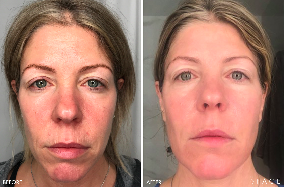 MicroLaserPeel Results Oakland County MI | FACE Beauty Science