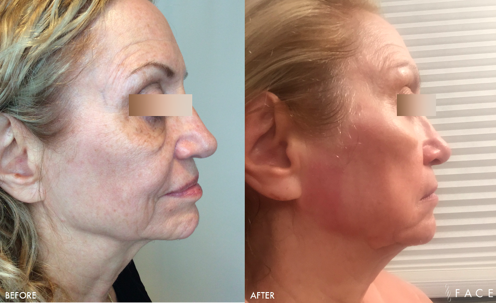 ProFractional™ Treatments in Oakland County MI | FACE Beauty Science