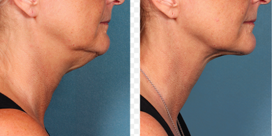 AGING AND WRINKLES Treatments in Oakland County MI | FACE Beauty Science