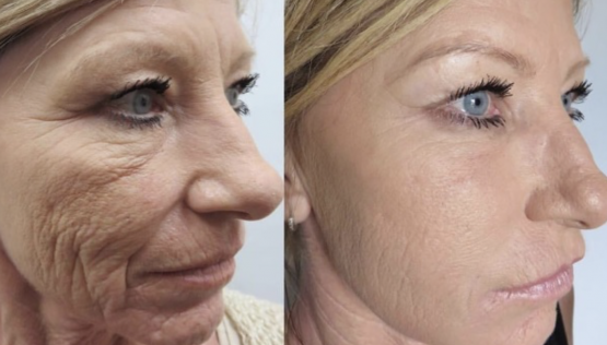Plasma Facelift with Injectable PRP Treatments in Oakland County MI | FACE Beauty Science
