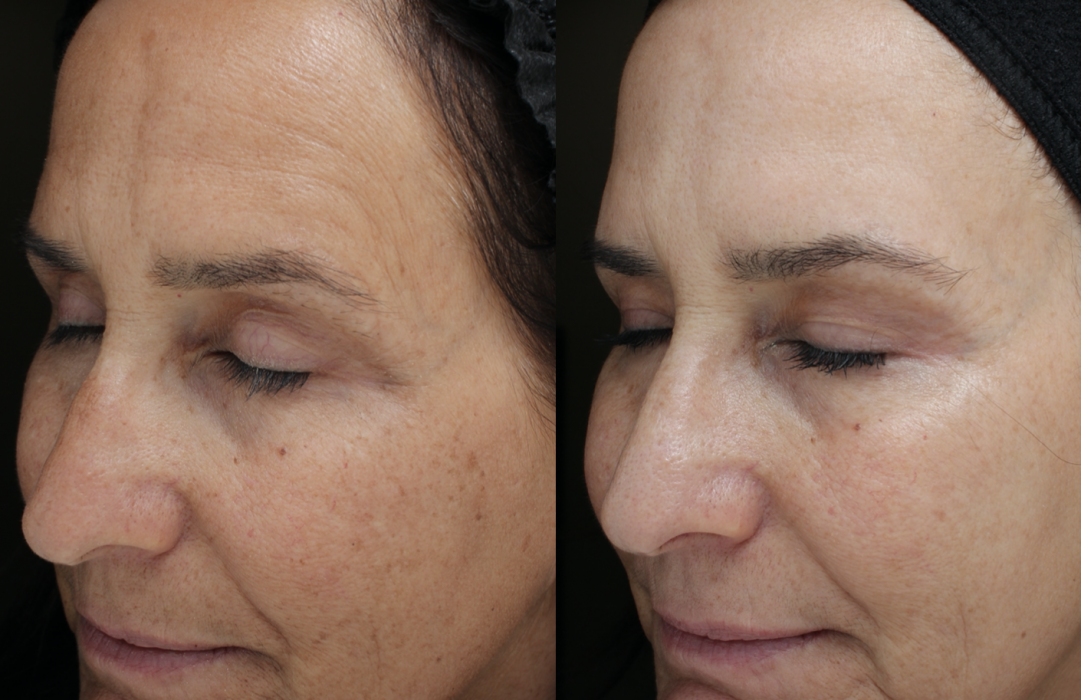 Moxi Laser Treatments in Oakland County MI | FACE Beauty Science