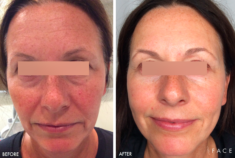 Rosacea Treatment Oakland County MI | FACE Beauty Science