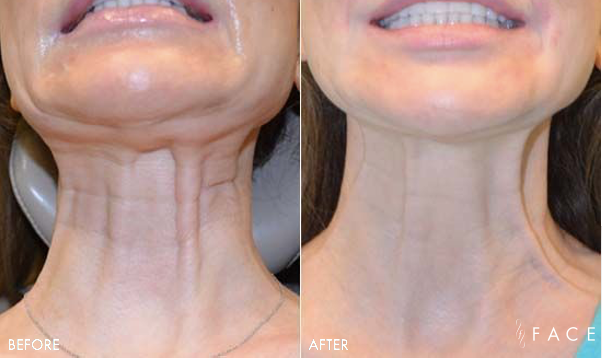 Nefertiti Neck Lift | FACE Beauty Science | Oakland County MI
